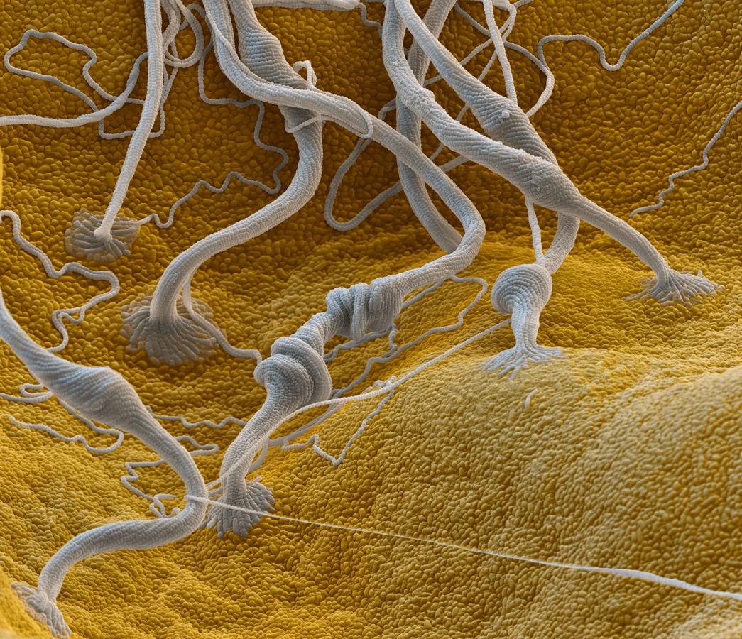 In 3300-facher Vergrößerung zeichnet sich ab: Die Fäden wachsen aus den Pollen heraus.