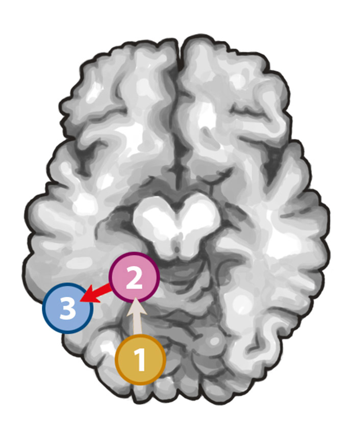 mysteries of the extrastriate body area Triple dissociation of faces, bodies, and objects in extrastriate cortex david pitcher,1, lucie charles,2 joseph t devlin,1 extrastriate body area (reba.