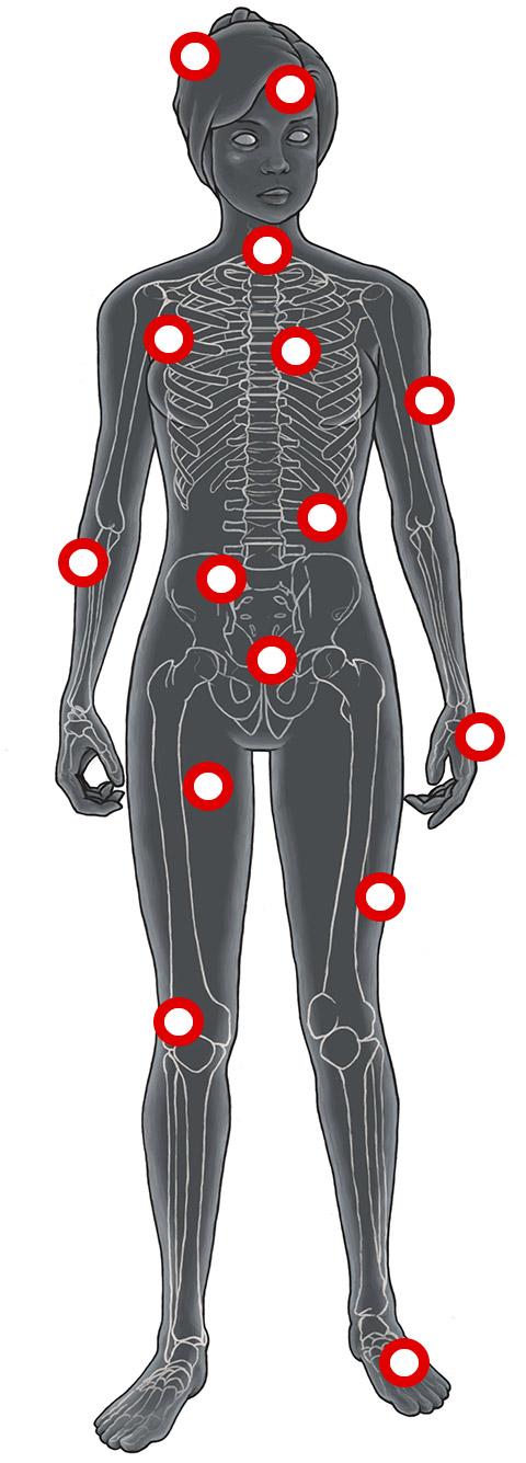 Anorexie Folgeschäden